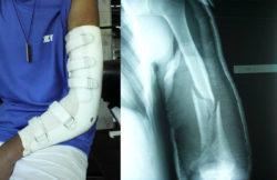 elbow11