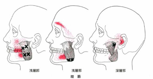 咬筋_顎の筋肉