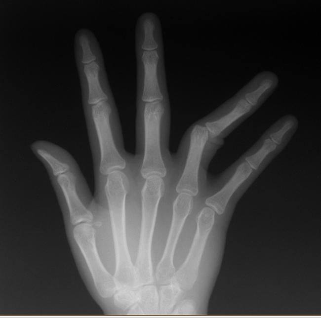 レントゲン写真指の脱臼